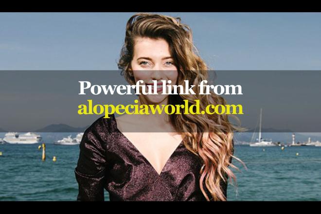 Powerful link from alopeciaworld.com 1 - kwork.com